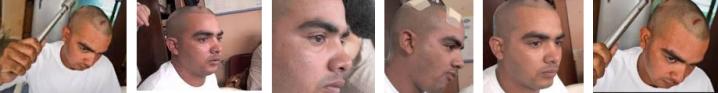 Hennry Perales  muestra las heridas causadas por agresiones de paramilitares