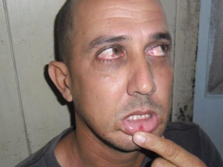 Jorge Vázquez muestra las lesiones por golpiza del oficial de la seguridad del estado Erick Francis Aquino Abreu en Sta Clara