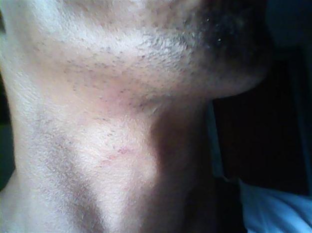 Alexis Sabaleta golpeado
