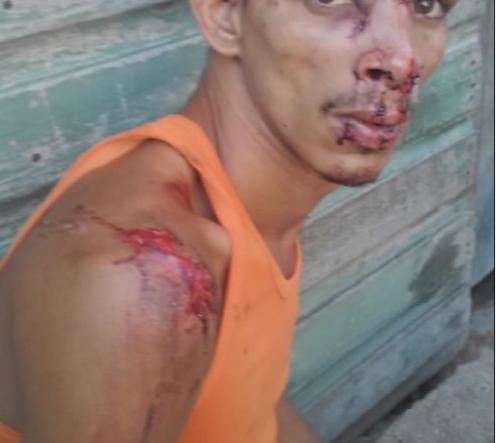"""Víctima del """"toque de queda"""" en Santiago de Cuba"""